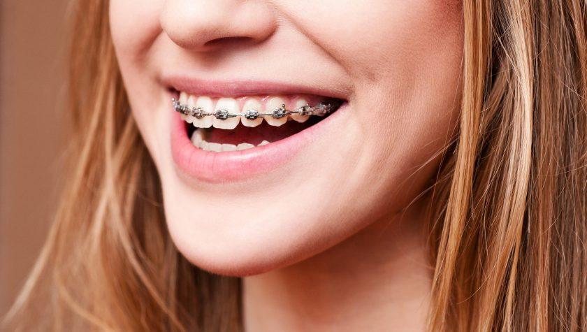 Ortodontia - sistemas Ertty